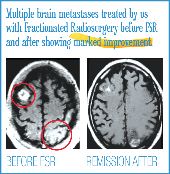 Multiple brain metastases