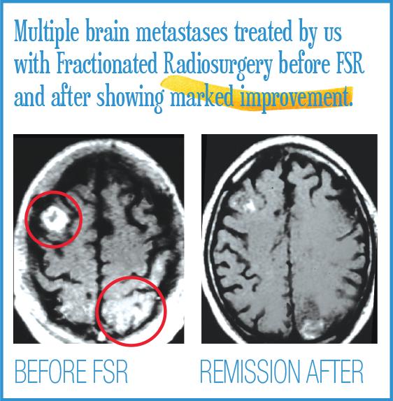 Multiple brain metastases