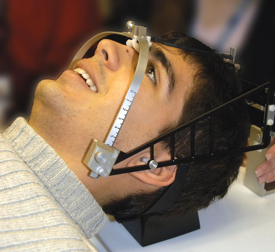 Brain Radiosurgery Head Frame