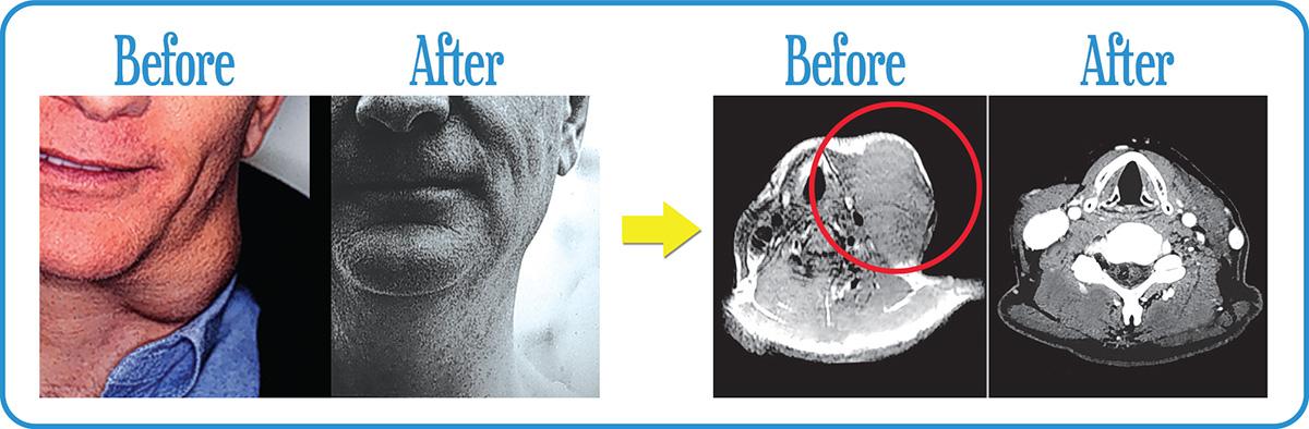 Metastatic cancer in the left neck completely gone after our FSR.