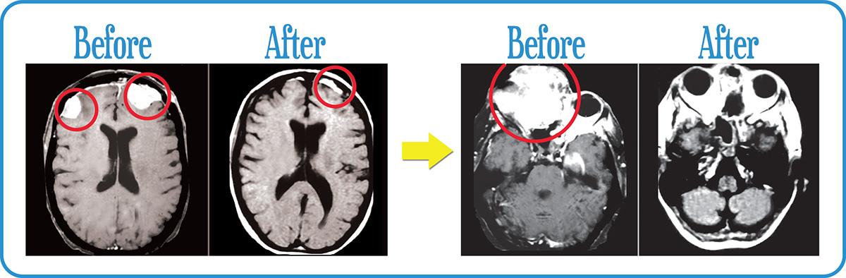 Scans confirm remission of Estheaoblastoma after our FSR.