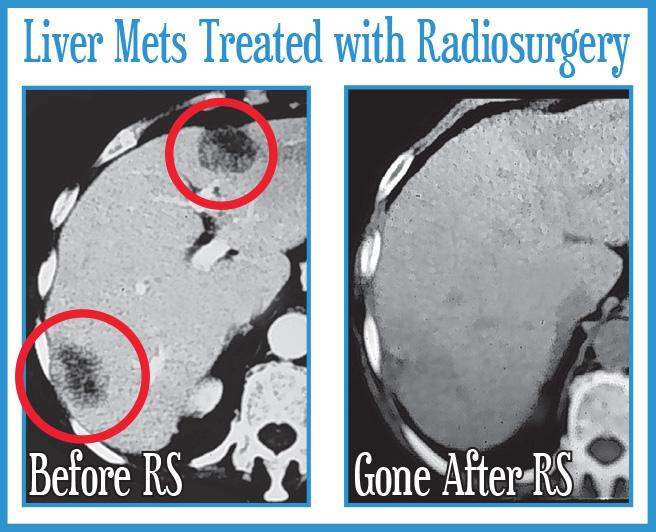 Liver Metastasis Treated with Radiosurgery