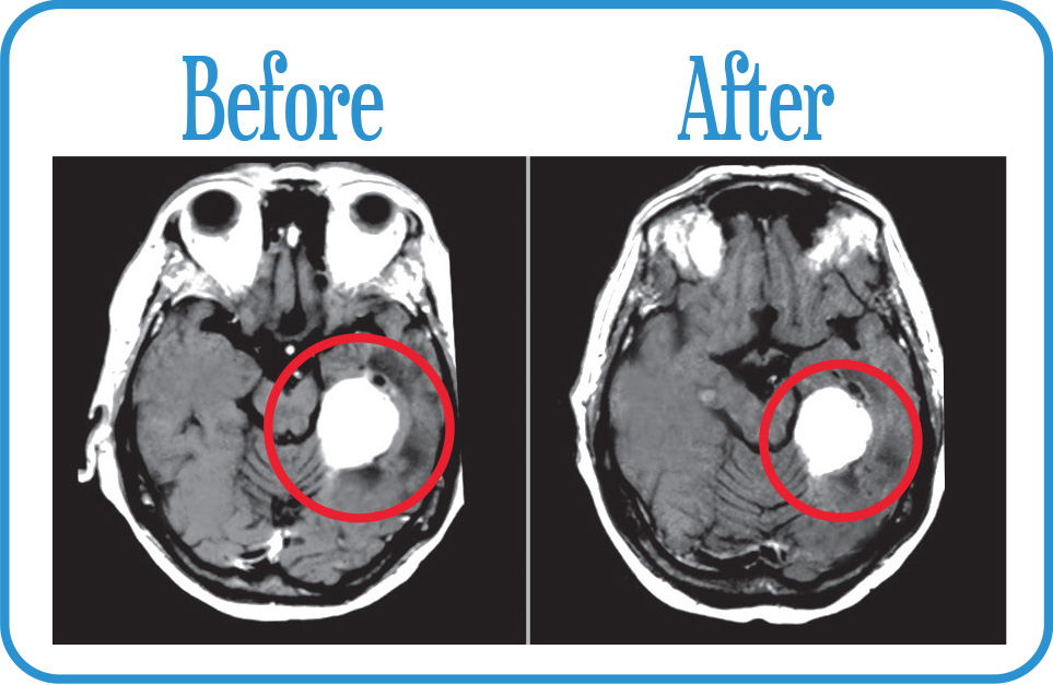 Meningioma in remission 12 years after our Fractionated Radiosurgery.