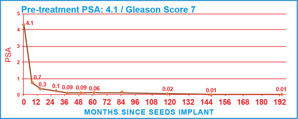 Pre-treatment PSA: 4.1 / Gleason Score 7