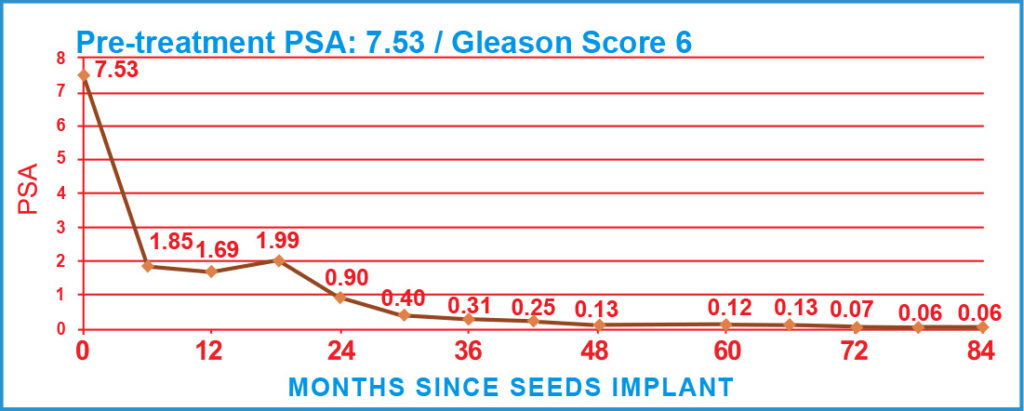 Pre-treatment PSA: 7.53 / Gleason Score 6