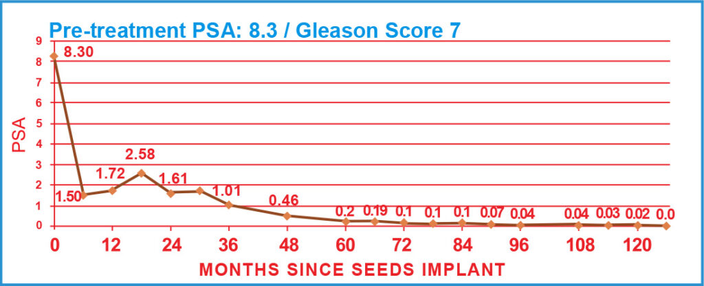 Pre-treatment PSA: 8.3 / Gleason Score 7