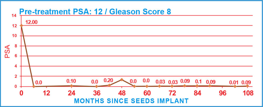 Pre-treatment PSA: 12 / Gleason Score 8