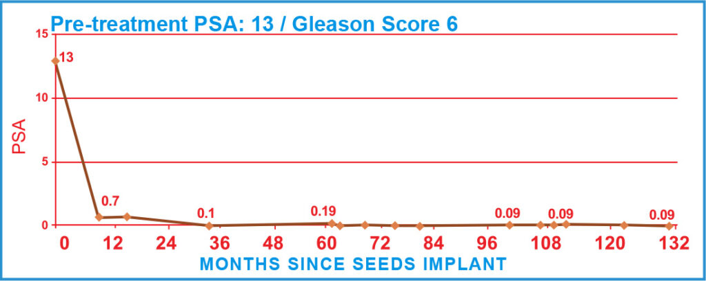 Pre-treatment PSA: 13 / Gleason Score 6