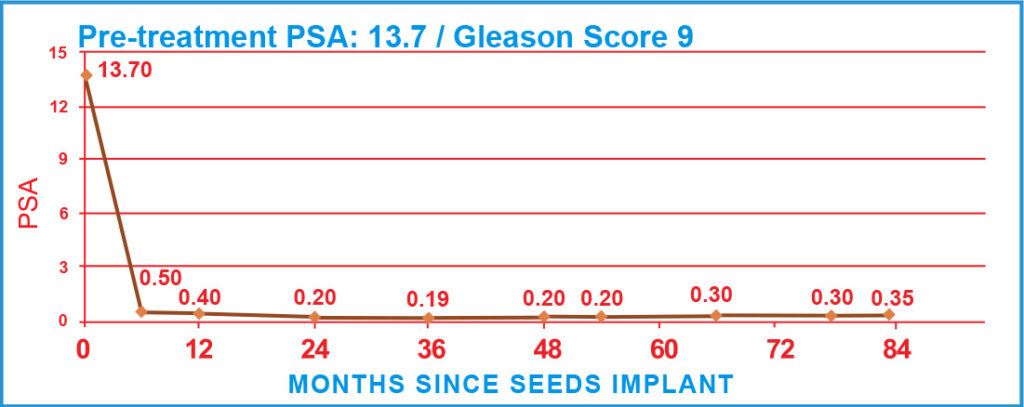Pre-treatment PSA: 13.7 / Gleason Score 9