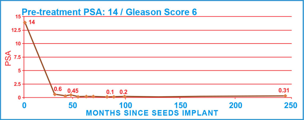 Pre-treatment PSA: 14 / Gleason Score 6