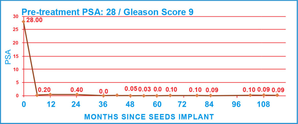 Pre-treatment PSA: 28 / Gleason Score 9