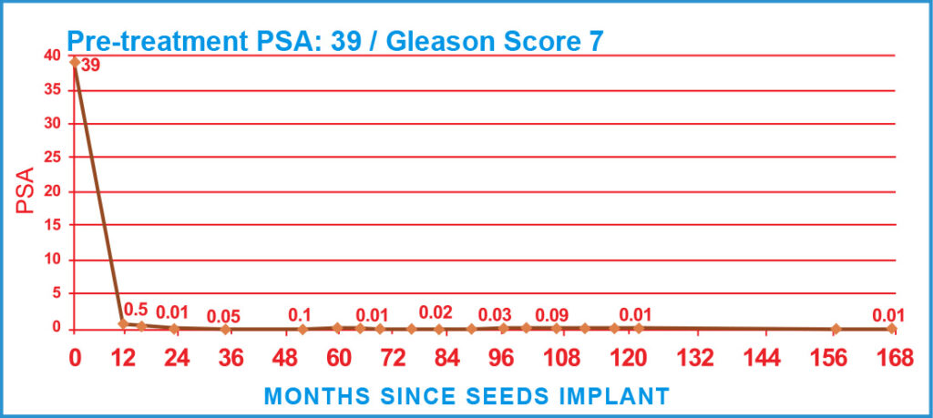 Pre-treatment PSA: 39 / Gleason Score 7