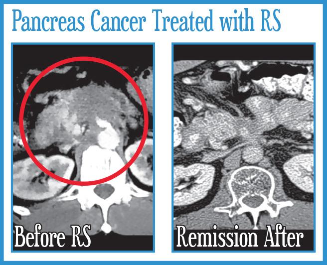 Pancreas Cancer Treated with Radiosurgery