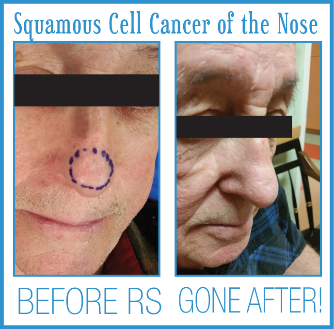 Squamous Cell Cancer Before After Radiosurgery