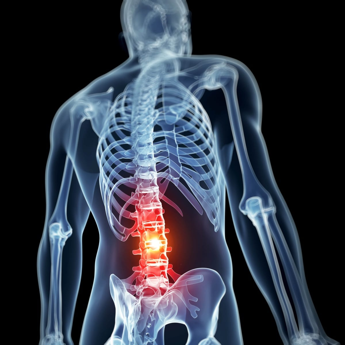 Low Back Pain xray