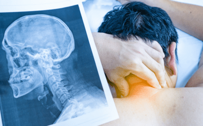 What's the number one cause of chronic pain and excessive medical expenses