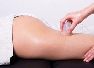 Cellulite Cupping Services