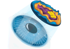 Aspheric-lasik-surgery-in-ambala