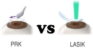 difference-between-lasik-and-prk