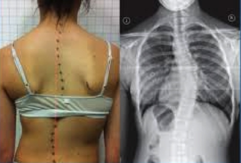 Have scoliosis? Seek professional advice for a proper exercise program