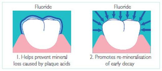 Enamel & Fluoride