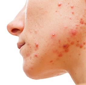 facial acne clinical partners llc current trials