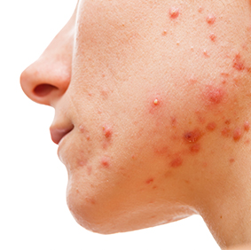 New Upcoming Trial: Facial Acne