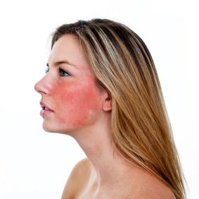 facial rosacea current trials clinical partners llc