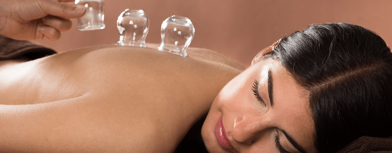 Cupping Apache Junction, AZ Physical Therapy