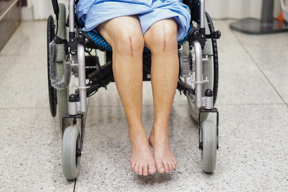 Post-Knee Surgery Physical Therapy