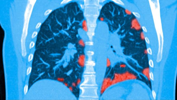 COVID-19 causes lung damage and scarring (red areas)