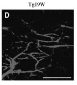Capillary imaging in live animals with ALS