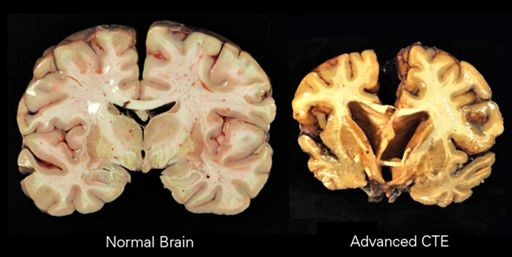 Comparison of healthy vs advanced CTE Brain