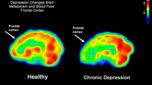 Functional MRI scan of a healthy brain and a brain from a patient with chronic depression