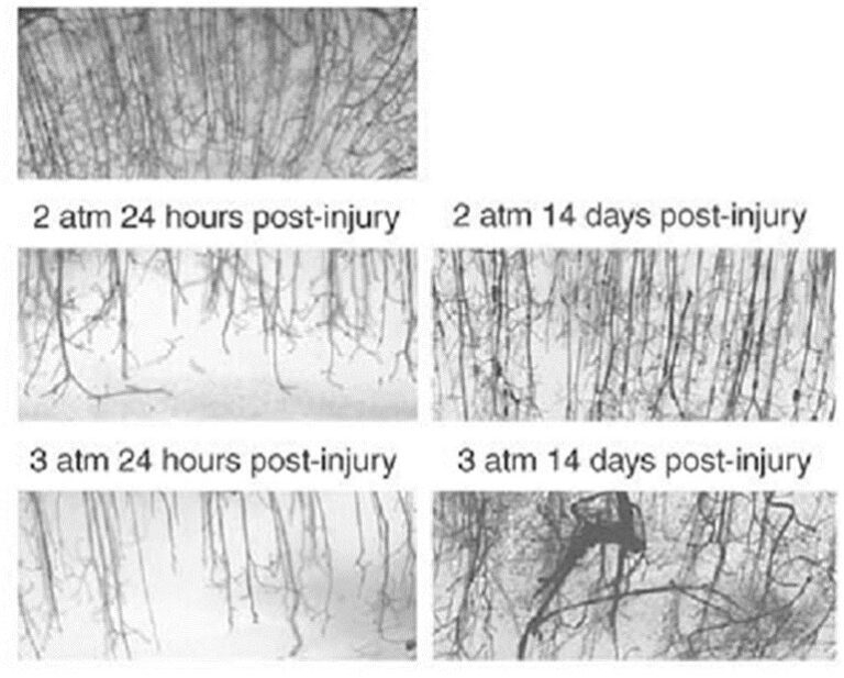Histological analysis of small blood vessels in brain tissue from rodents subjected to experimental traumatic brain injury