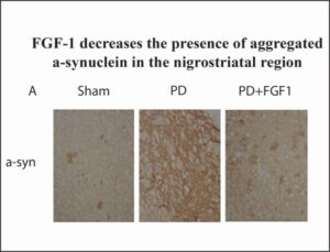 Parkinson's Disease nigrostriatal area with FGF-1 treatment
