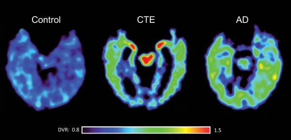 PET scan with the tau-specific tracer, FDDNP differentiates between CTE and Alzheimer's disease