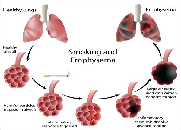 Smoking damages lung alveoli and leads to emphysema