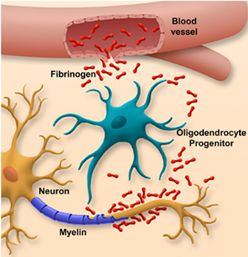 Fibrinogen leaking into the brain where the blood-brain barrier has broken down