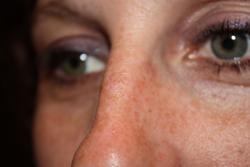 Nose Spot After