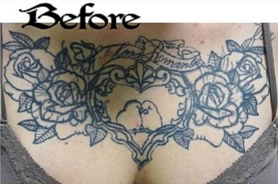 Before Coverup Tattoo on Chest