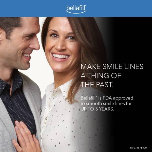 smilingcouplebellafill