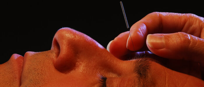 Facial Acupuncture in Howard County Maryland