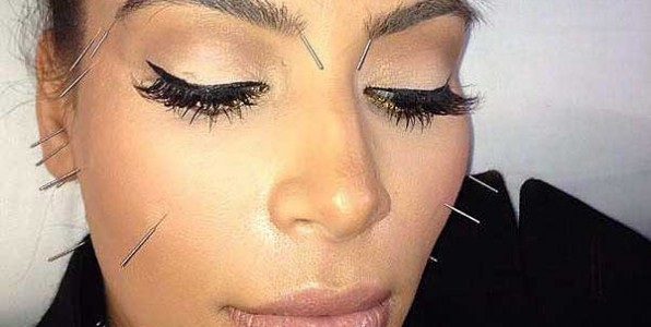 kim kardashian facial acupuncture