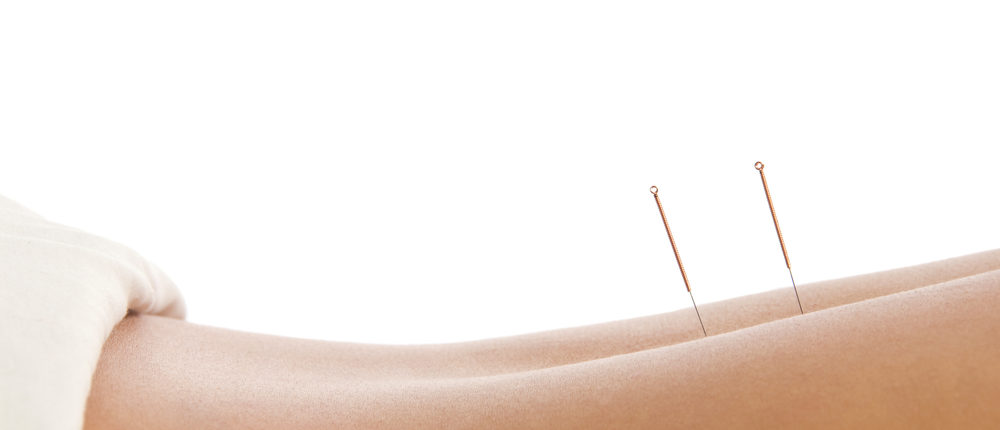 acupuncture of back