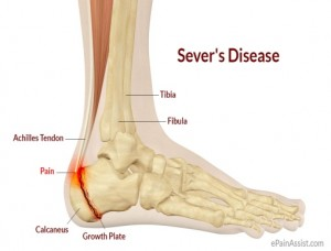 Heel Pain with Sever's Disease