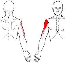 Bicipital Tendinitis Referred Pain Pattern