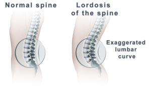 Excessive Lordosis