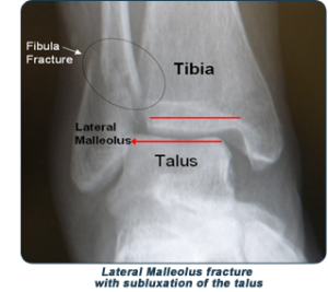 ankle-fracture
