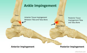 ankle-impingement